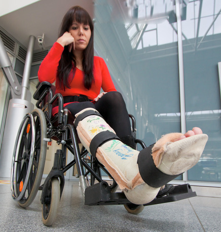 woman with broken leg